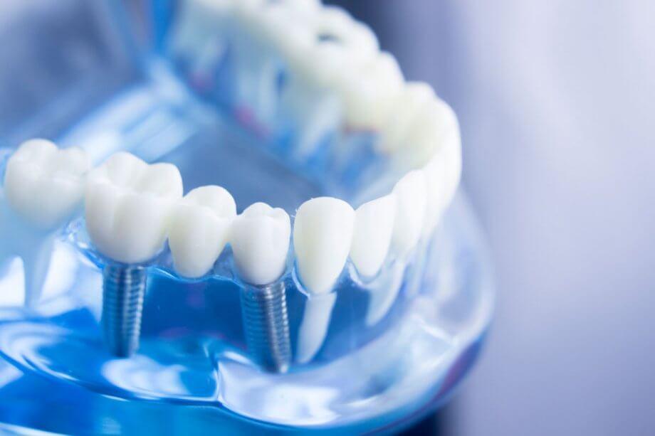 clear model of dental implants