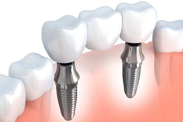 Dental Implant Supported Bridges in Albuquerque