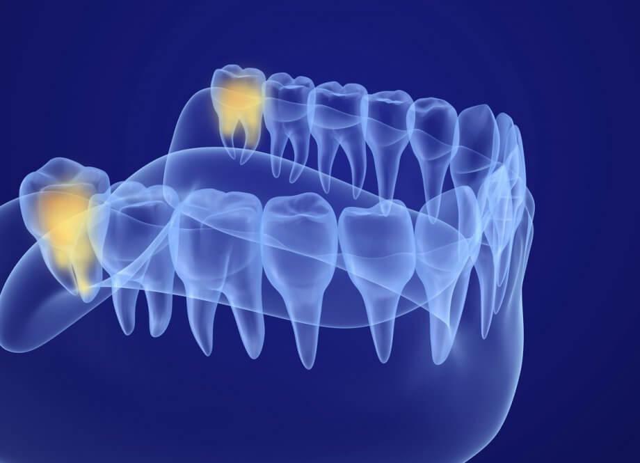 XRay View Of Wisdom Teeth